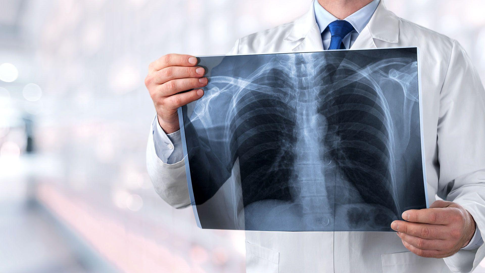 pulmones enfermedad respiratoria