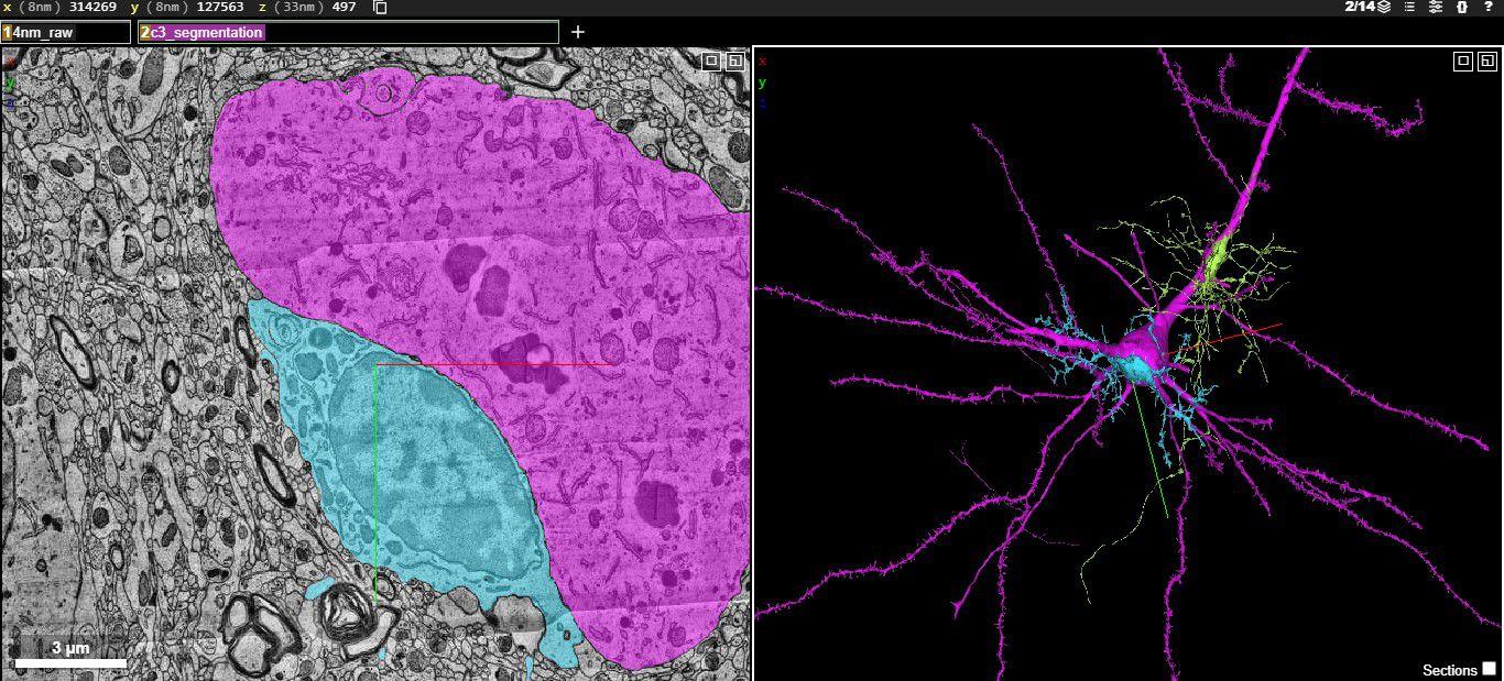 Mapa cerebral Google Harvard