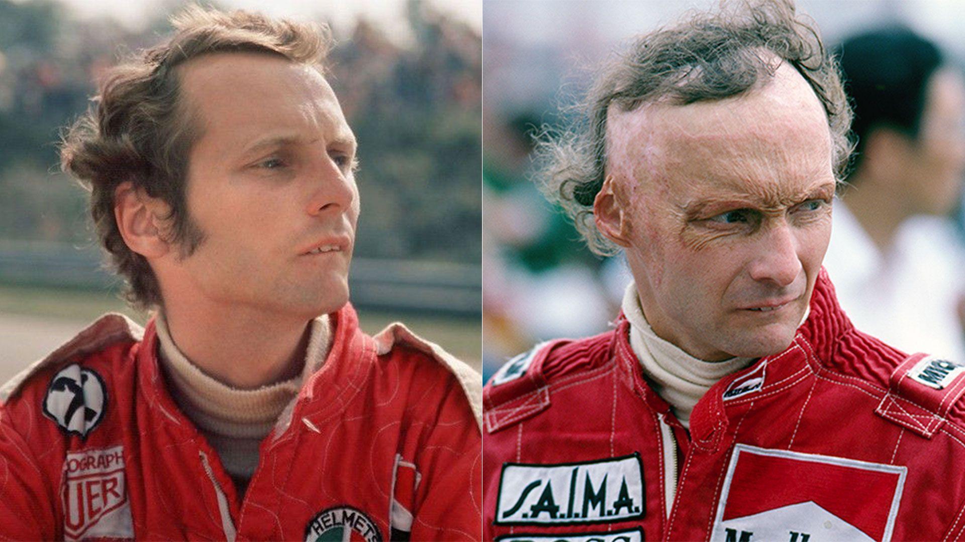 Niki Lauda, antes y después del accidente de Nurburgring